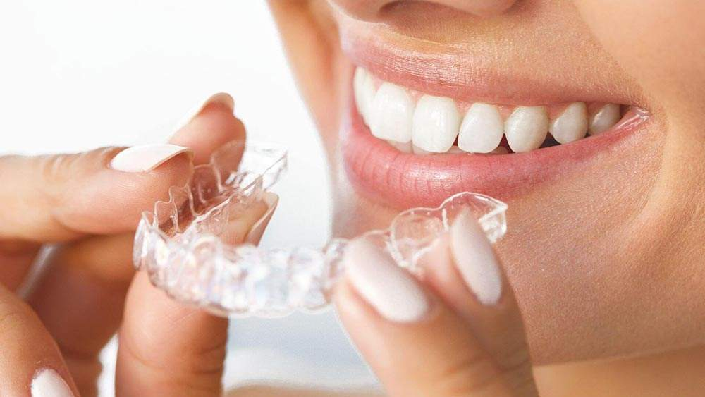 Wear-invisalign-for-how-long